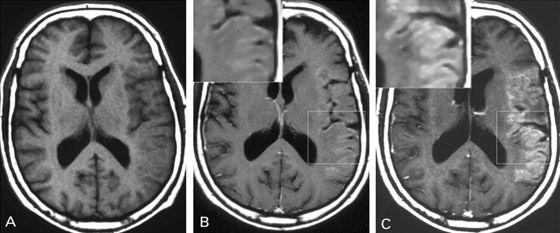 что лучше МСКТ головного мозга или МРТ