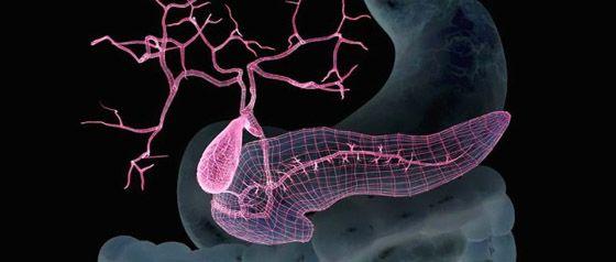 гематома поджелудочной железы