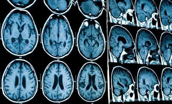 контрастное вещество для МРТ головного мозга
