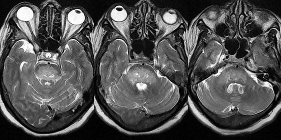 мрт снимки глазных орбит и зрительных нервов
