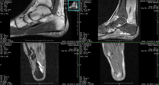 мрт снимки голеностопного сустава