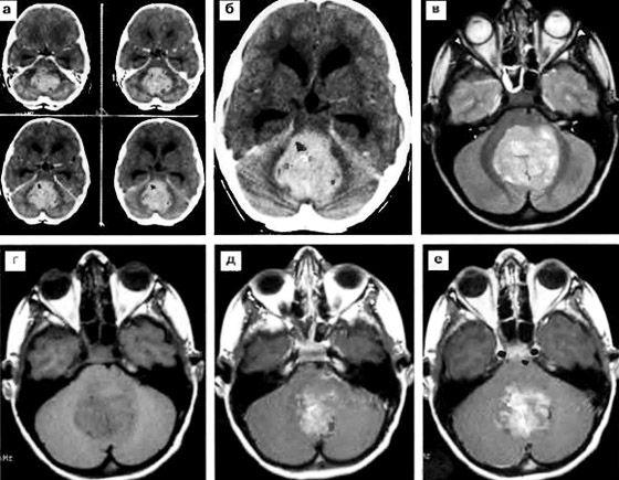 мрт снимки головного мозга ребенку