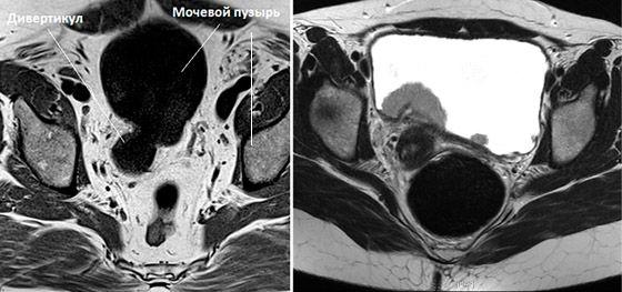 мрт снимки мочевого пузыря