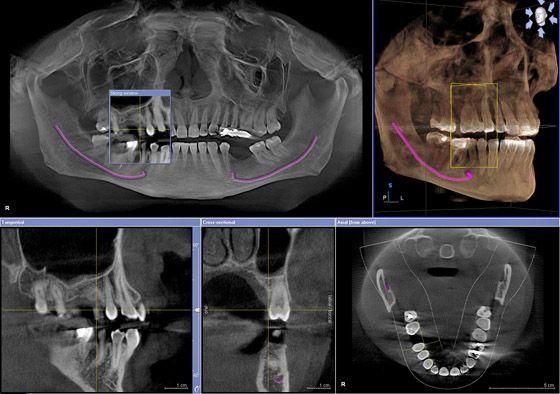 мрт снимки зубов